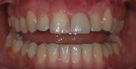 Replacing-a-Single-Front-Tooth-With-An-Implant-After-Image