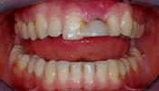 Replacing-a-Single-Front-Tooth-With-An-Implant-Before-Image