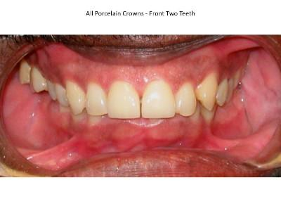 All Ceramic Crowns